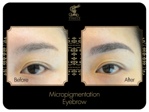 Micropigmentation@TINGLE